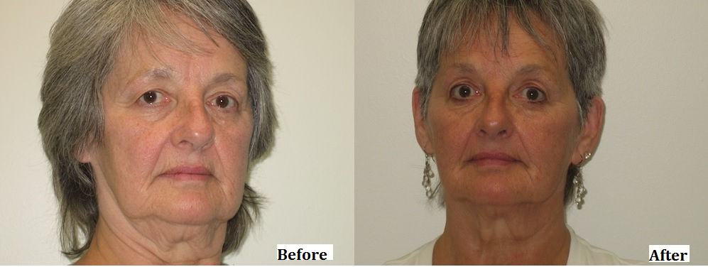 Facial Rejuvination Comparison